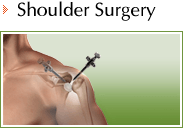 Shoulder - Daniel F Craviotto Jr MD - Orthopaedic Surgery